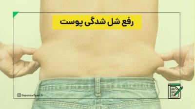 رفع شل شدگی پوست بعد از کاهش وزن